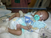 Post-operative baby in Paediatric Surgery at the Christian Medical College & Hospital (CMC), Ludhiana